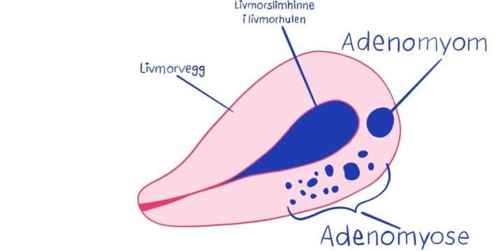 Illustrasjon av adenomyose